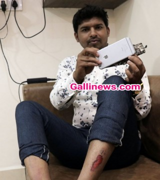 Apple iPhone6 Mobile hua blast charging ke waqt Mobile owner injured at Ambernath