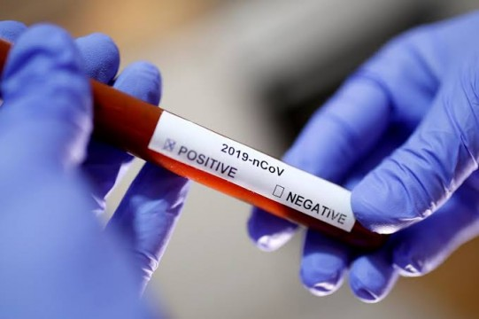 Six New Test Positive in Maharashtra Total Positive Cases 159